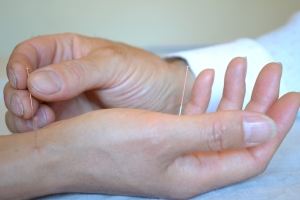 Acupuncture South Dublin Acupuncture Meath