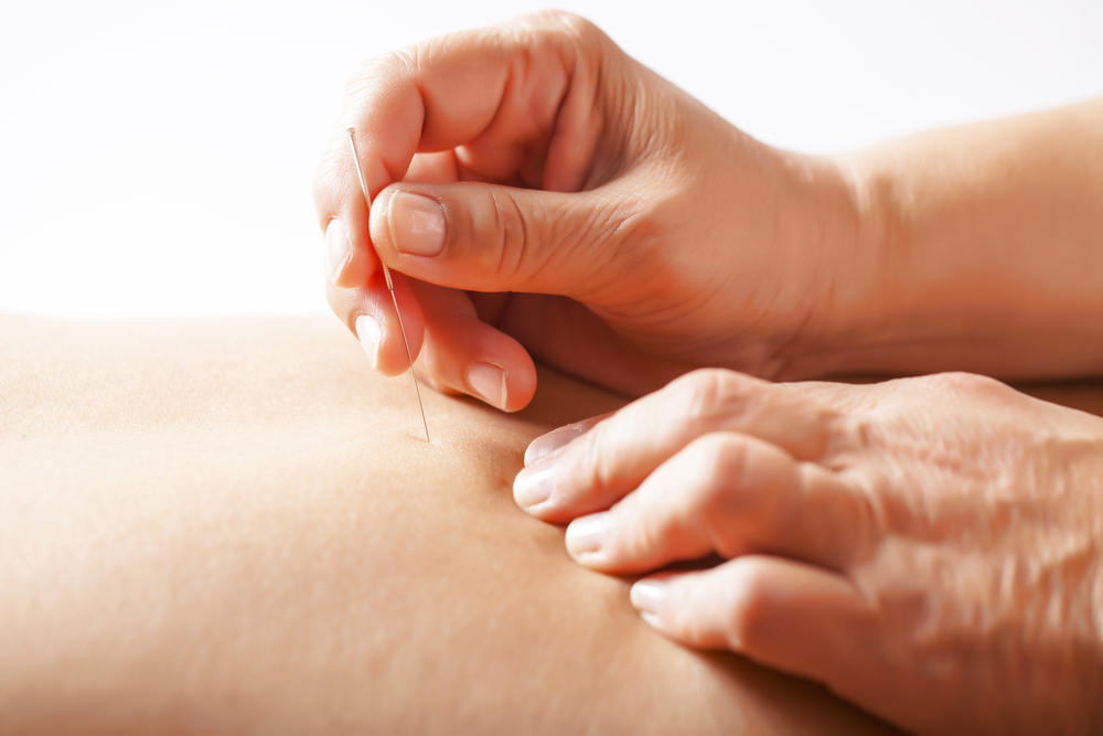 Acupuncture Dun Laoghaire | Acupuncture Ashbourne