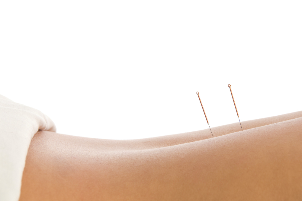 Acupuncture Ashbourne Acupuncture Sandycove Acupuncture Dun Laoghaire